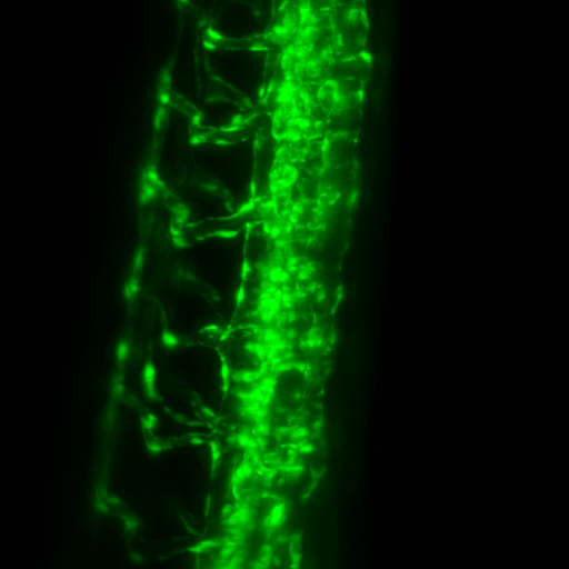 Zebra Fish - GFP-FLI1